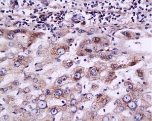 Immunohistochemistry (Formalin/PFA-fixed paraffin-embedded sections) - Anti-MRP2 antibody (ab203397)
