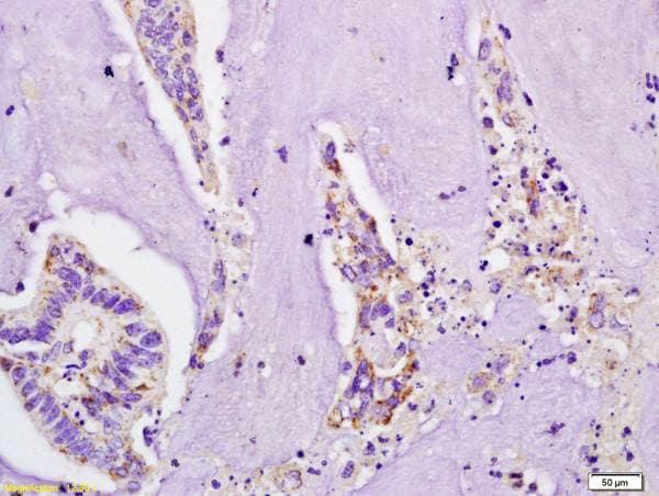Immunohistochemistry (Formalin/PFA-fixed paraffin-embedded sections) - Anti-IL-4R antibody (ab203398)