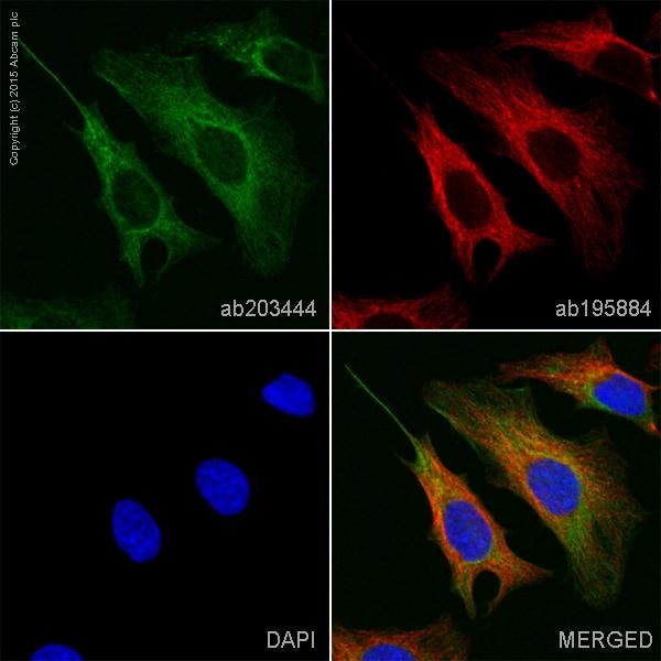 Immunocytochemistry/ Immunofluorescence - Anti-Cytokeratin 19 antibody [EP1580Y] (Alexa Fluor® 555) (ab203444)