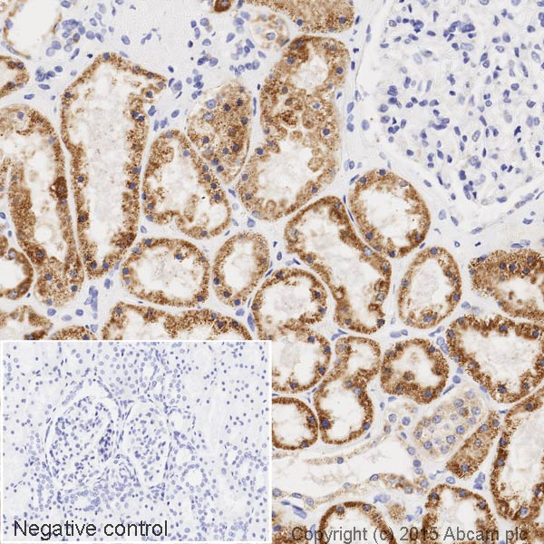 Immunohistochemistry (Formalin/PFA-fixed paraffin-embedded sections) - HRP Anti-ACADM/MCAD antibody [EPR3708] (ab203465)