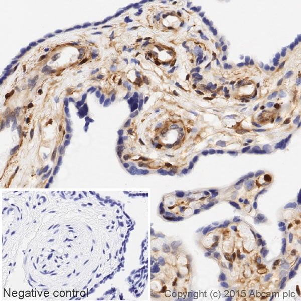 Immunohistochemistry (Formalin/PFA-fixed paraffin-embedded sections) - Anti-Galectin 1 antibody [EPR3205] (HRP) (ab203476)