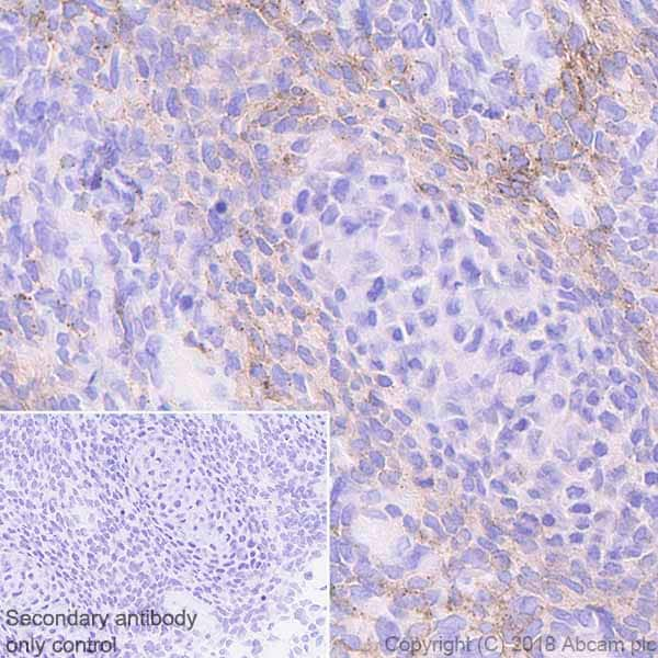Immunohistochemistry (Formalin/PFA-fixed paraffin-embedded sections) - Anti-PDGFR alpha antibody [EPR22059-270] (ab203491)