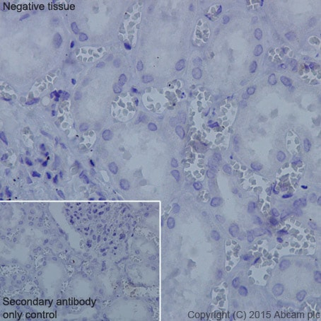 Immunohistochemistry (Formalin/PFA-fixed paraffin-embedded sections) - Anti-TNNI1 antibody [EPR17120-11] (ab203515)