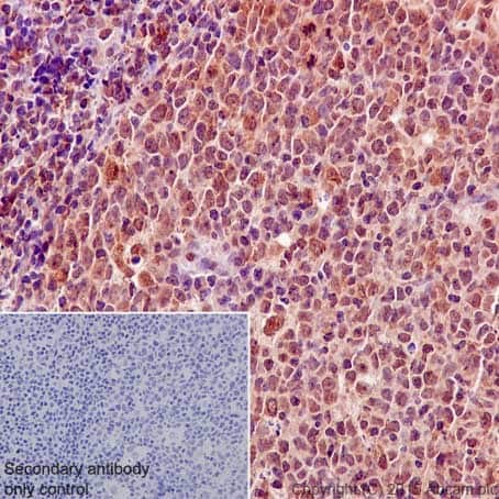 Immunohistochemistry (Formalin/PFA-fixed paraffin-embedded sections) - Anti-Bcl2-L-13 antibody [EP10625] (ab203516)