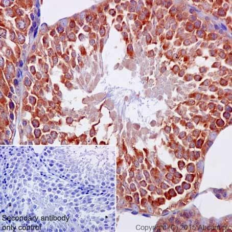 Immunohistochemistry (Formalin/PFA-fixed paraffin-embedded sections) - Anti-BTF3 antibody [EPR16495] (ab203517)