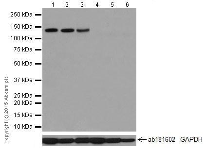 Western blot - Anti-PCDH11X antibody [EPR16916] (ab203520)