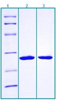 SDS-PAGE - Recombinant Human Betatrophin protein (ab203551)