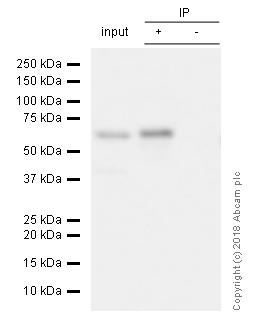 Immunoprecipitation - Anti-S6K1 antibody [E343] - BSA and Azide free (ab203558)