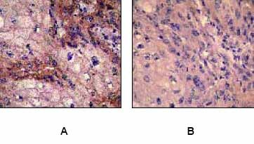 Immunohistochemistry (Formalin/PFA-fixed paraffin-embedded sections) - Anti-EGFR (phospho Y1173) antibody [E124] - BSA and Azide free (ab203559)