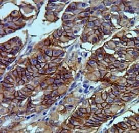 Immunohistochemistry (Formalin/PFA-fixed paraffin-embedded sections) - Anti-Claudin18 antibody [34H14L15] (ab203563)