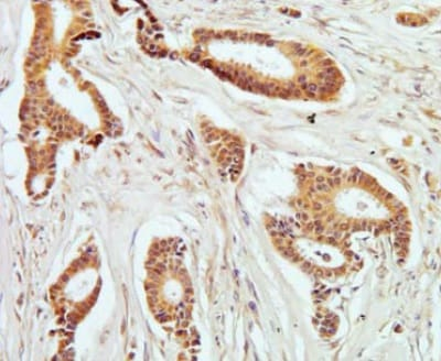 Immunohistochemistry (Formalin/PFA-fixed paraffin-embedded sections) - Anti-PKC theta/PRKCQ (phospho T538) antibody [F4H4L1] (ab203565)