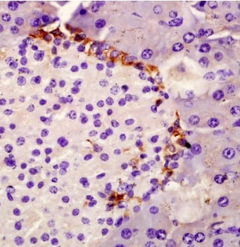 Immunohistochemistry (Formalin/PFA-fixed paraffin-embedded sections) - Anti-SPINK1/P12 antibody (ab203579)