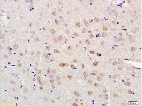 Immunohistochemistry (Formalin/PFA-fixed paraffin-embedded sections) - Anti-LLGL1 antibody (ab203581)