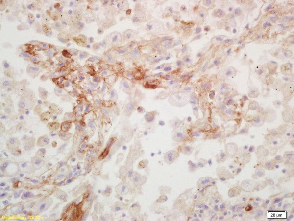 Immunohistochemistry (Formalin/PFA-fixed paraffin-embedded sections) - Anti-CD109 antibody (ab203588)
