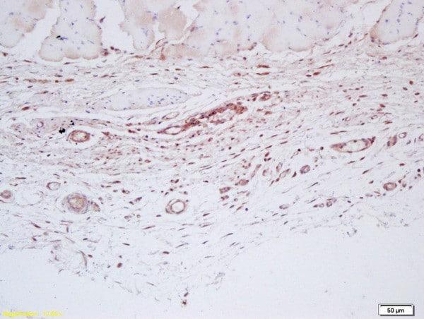 Immunohistochemistry (Formalin/PFA-fixed paraffin-embedded sections) - Anti-Factor VIII antibody (ab203590)