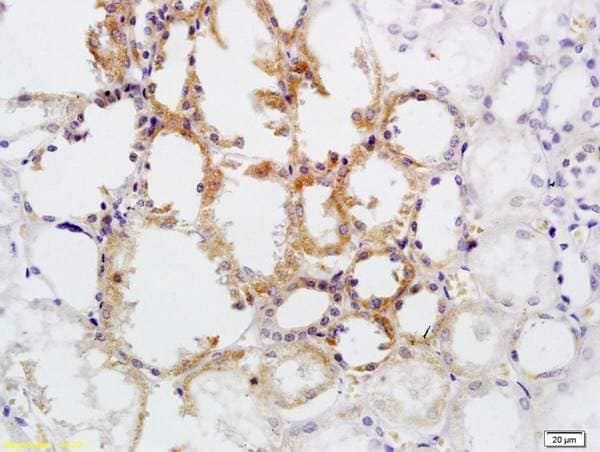 Immunohistochemistry (Formalin/PFA-fixed paraffin-embedded sections) - Anti-CD30 antibody (ab203593)