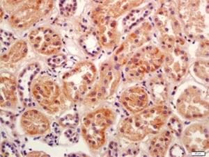 Immunohistochemistry (Formalin/PFA-fixed paraffin-embedded sections) - Anti-BBS5 antibody (ab203621)