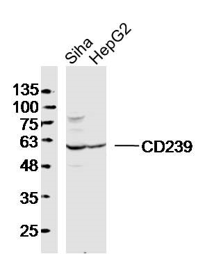 Western blot - Anti-CD239/BCAM antibody (ab203661)