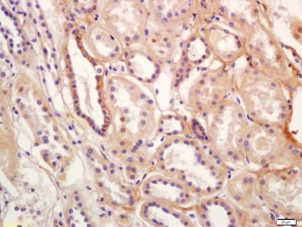 Immunohistochemistry (Formalin/PFA-fixed paraffin-embedded sections) - Anti-SLC12A3 antibody - C-terminal (ab203674)