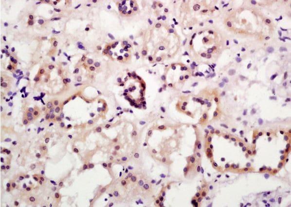 Immunohistochemistry (Formalin/PFA-fixed paraffin-embedded sections) - Anti-A4GALT antibody (ab203681)