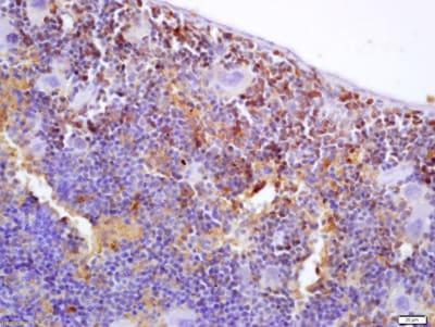 Immunohistochemistry (Formalin/PFA-fixed paraffin-embedded sections) - Anti-S100P binding protein antibody (ab203689)