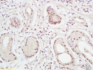 Immunohistochemistry (Formalin/PFA-fixed paraffin-embedded sections) - Anti-XPC antibody (ab203693)