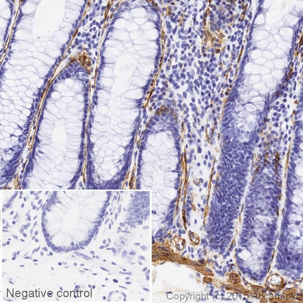 Immunohistochemistry (Formalin/PFA-fixed paraffin-embedded sections) - Anti-alpha smooth muscle Actin antibody [1A4] (HRP) (ab203696)