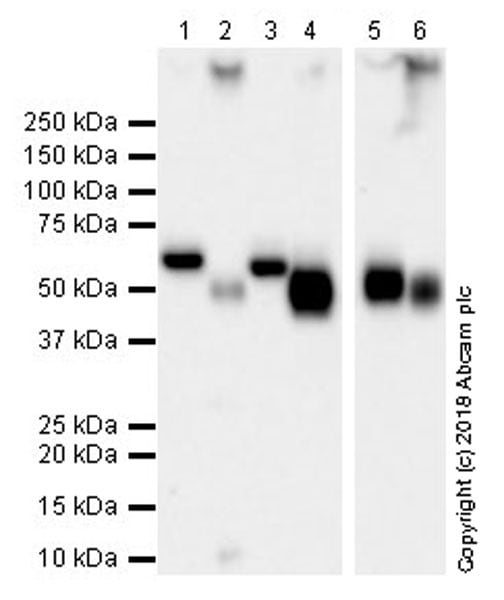 Western blot - Anti-Coronin 1a/TACO antibody [EPR19467-36] (ab203698)