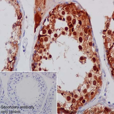 Immunohistochemistry (Formalin/PFA-fixed paraffin-embedded sections) - Anti-Inhibin alpha antibody [EPR17083] (ab203824)