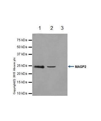 Immunoprecipitation - Anti-MAGP2 antibody [EPR17581] (ab203828)