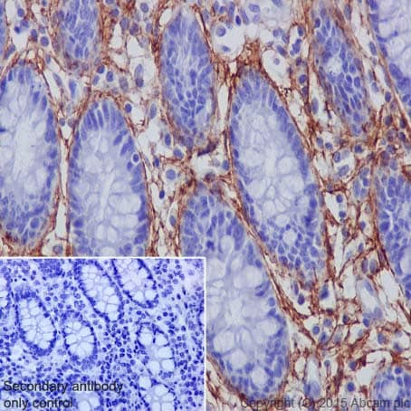 Immunohistochemistry (Formalin/PFA-fixed paraffin-embedded sections) - Anti-MAGP2 antibody [EPR17581] (ab203828)