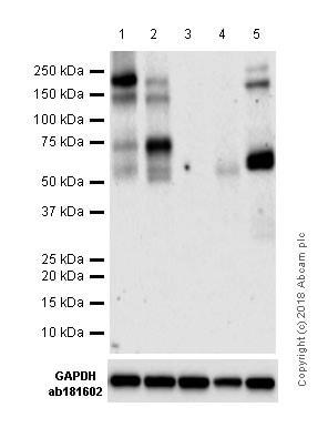 Western blot - Anti-ZEB1 antibody [EPR17375] (ab203829)