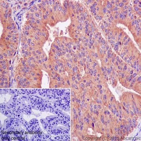 Immunohistochemistry (Formalin/PFA-fixed paraffin-embedded sections) - Anti-ACTR1B antibody [EPR16969] (ab203835)
