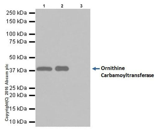 Immunoprecipitation - Anti-Ornithine Carbamoyltransferase/OTC antibody [EPR19725] (ab203859)