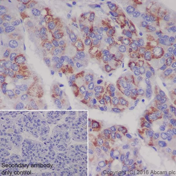 Immunohistochemistry (Formalin/PFA-fixed paraffin-embedded sections) - Anti-Ornithine Carbamoyltransferase/OTC antibody [EPR19725] (ab203859)