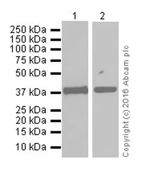 Western blot - Anti-Ornithine Carbamoyltransferase/OTC antibody [EPR19725] (ab203859)