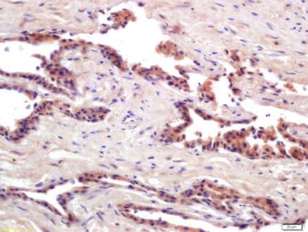 Immunohistochemistry (Formalin/PFA-fixed paraffin-embedded sections) - Anti-PRSS8 antibody (ab203879)