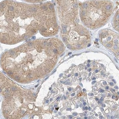 Immunohistochemistry (Formalin/PFA-fixed paraffin-embedded sections) - Anti-NAGK antibody (ab203900)