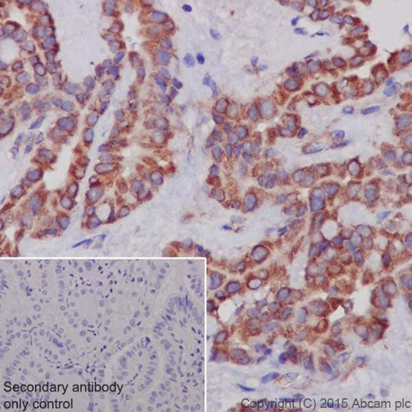 Immunohistochemistry (Formalin/PFA-fixed paraffin-embedded sections) - Anti-MTCO1 antibody [EPR19628] (ab203912)