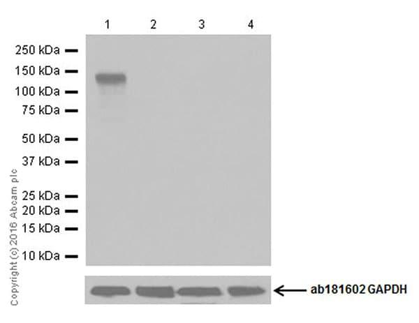 Western blot - Anti-CRISPR-Cas9 antibody [EPR19799] (ab203933)