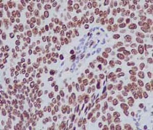 Immunohistochemistry (Formalin/PFA-fixed paraffin-embedded sections) - Anti-Histone H1.3 antibody [EPR12683] - BSA and Azide free (ab203948)