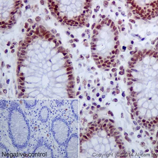 Immunohistochemistry (Formalin/PFA-fixed paraffin-embedded sections) - Anti-Histone H2A (acetyl K9) antibody [EPR17471] - BSA and Azide free (ab203949)