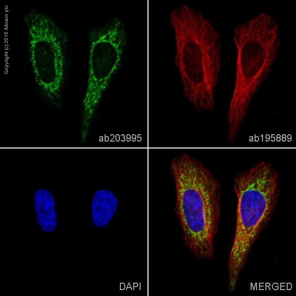 Immunocytochemistry/ Immunofluorescence - Anti-Cytochrome P450 17A1/CYP17A1 antibody [EPR6293] (Alexa Fluor® 488) (ab203995)