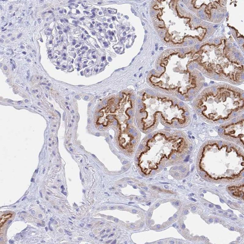 Immunohistochemistry (Formalin/PFA-fixed paraffin-embedded sections) - Anti-TSG6 antibody (ab204049)