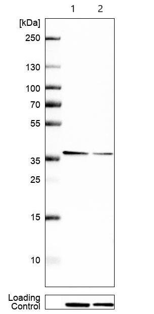 Western blot - Anti-TSG6 antibody (ab204049)
