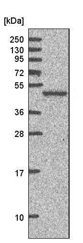 Western blot - Anti-AKAP5 antibody (ab204082)