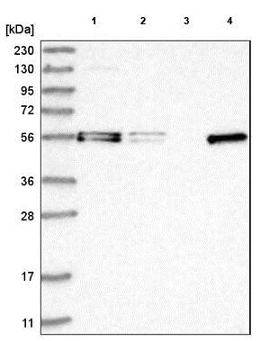 Western blot - Anti-FAM98A antibody (ab204083)