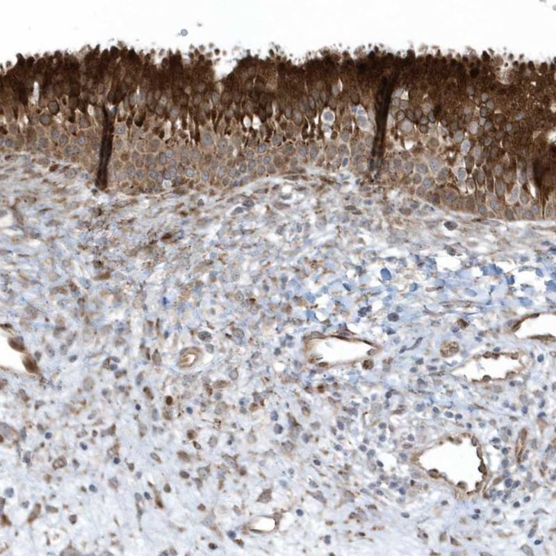 Immunohistochemistry (Formalin/PFA-fixed paraffin-embedded sections) - Anti-FAM98A antibody (ab204083)