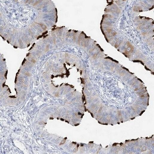 Immunohistochemistry (Formalin/PFA-fixed paraffin-embedded sections) - Anti-ADGB/Androglobin antibody (ab204085)