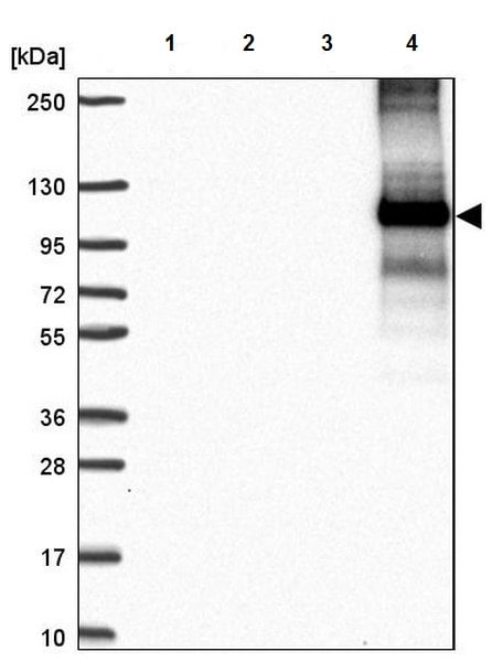 Western blot - Anti-Glycine decarboxylase antibody (ab204087)